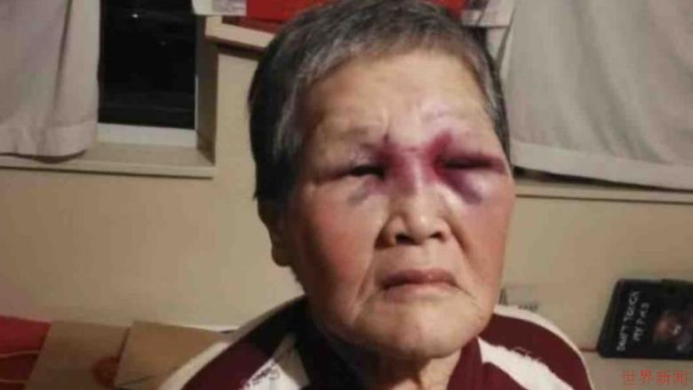 在美国击退袭击者的中国老奶奶被称赞勇敢